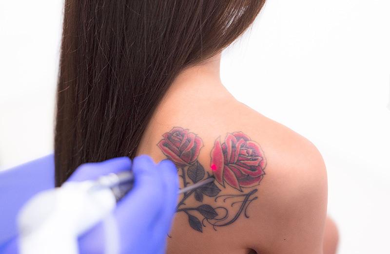 Rimozione tattoo